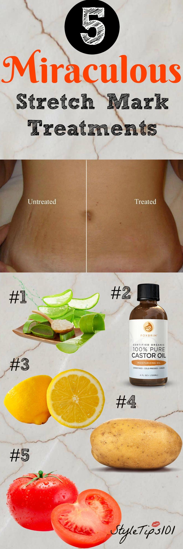 5 Homemade Stretch Mark Remedies Stretch Mark Remedies Skin