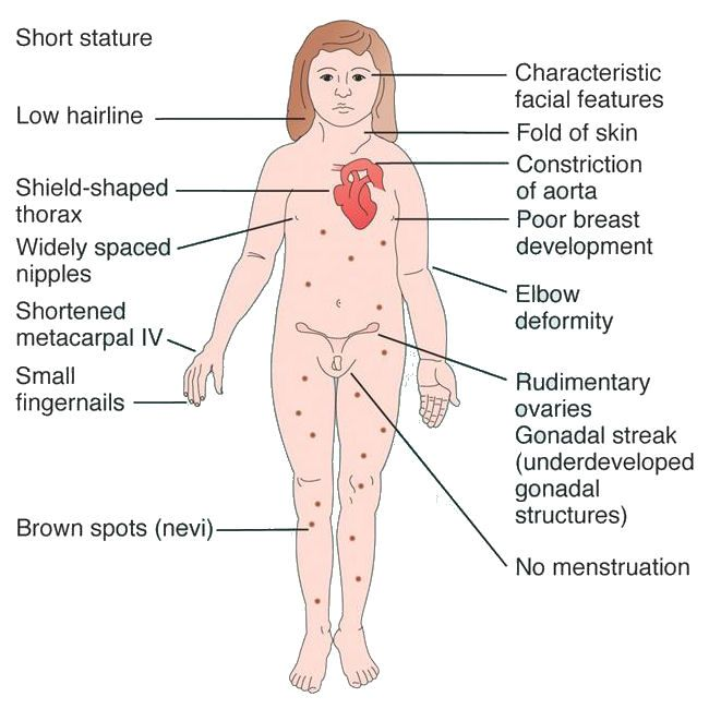 a chromosomal disorder resulting in a syndrome characterized by turners syndrome A single gene disorder is caused by variations (or mutations)  and if there is something they can do to prevent or delay resulting medical problems.