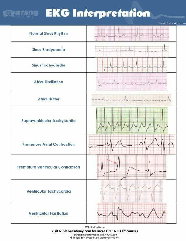 EKG strip interpretation | Nursing School and Beyond! | Pinterest ...