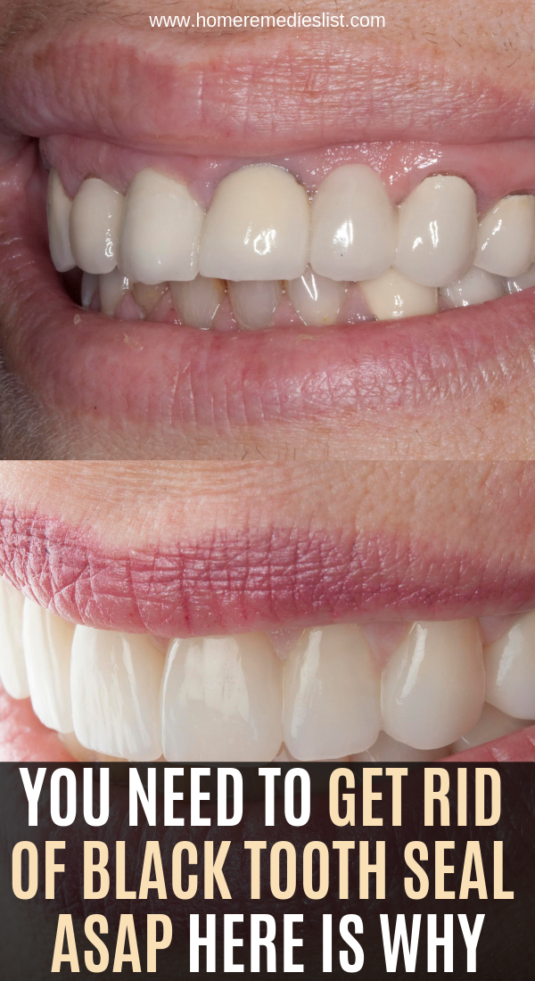 You Need To Get Rid Of Black Tooth Seal Asap Here Is Why Black Teeth Teeth Diy Natural Products