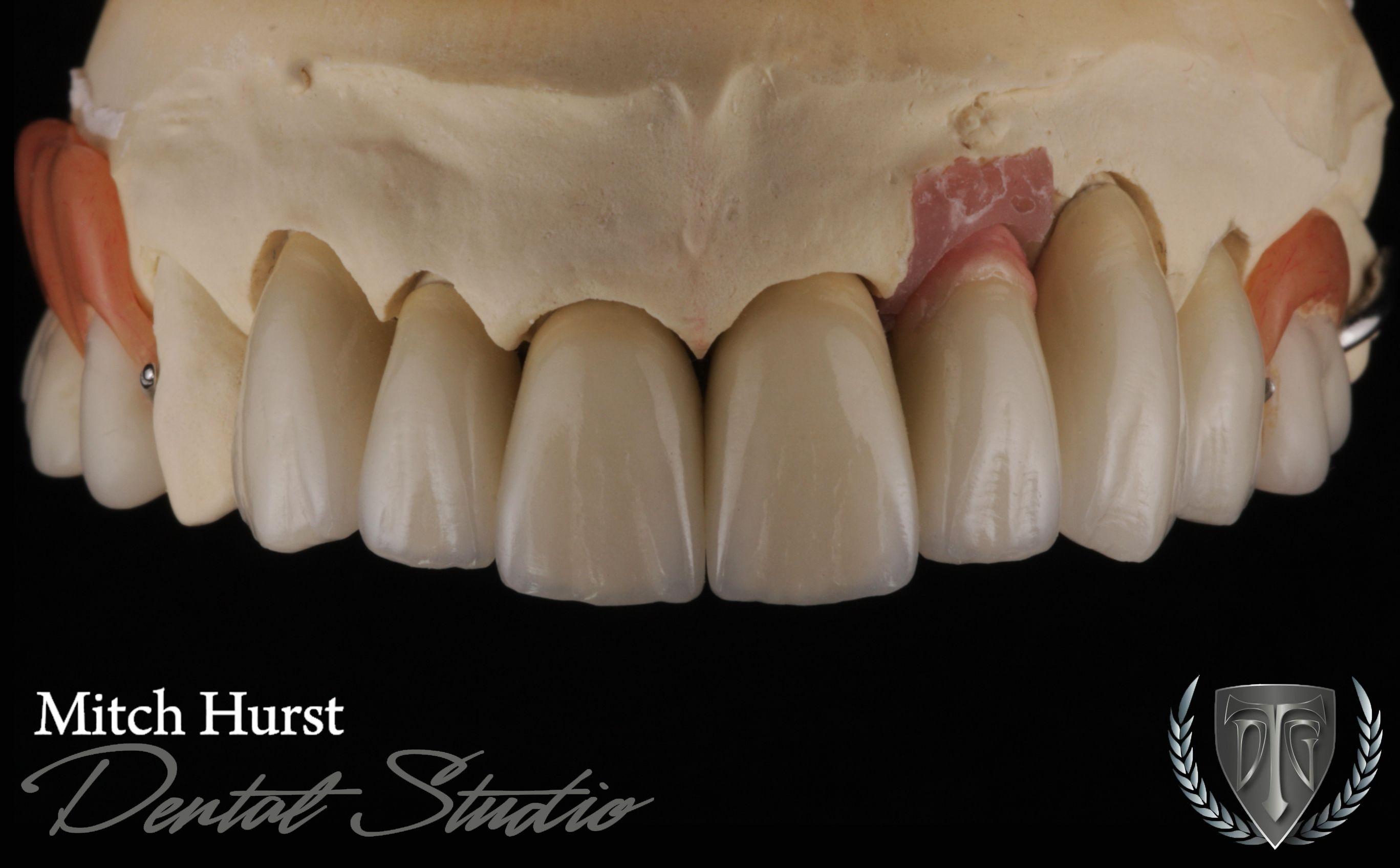 Dental Crowns Cosmetic Dentistry Beautiful Smile Ceramic Restoration Hurstdentalstudio Com Estetica Dental Dental Anatomia Dental