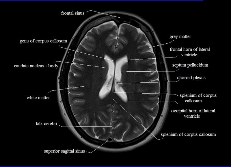 MRI anatomy brain axial image 18 | Radiology | Pinterest