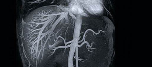 Researchers at Mount Sinai Heart are working on a better diagnostic test for #Coronary #artery #disease - in the form of an advanced type of magnetic resonance imaging ( #MRI) that is capable of pinpointing potential hazards long before people develop symptoms of #atherosclerosis (the buildup of fat deposits in the #blood #vessels). Known as black-blood MRI, the technique provides the most detailed images yet recorded of the walls and main channels of coronary arteries in living humans.