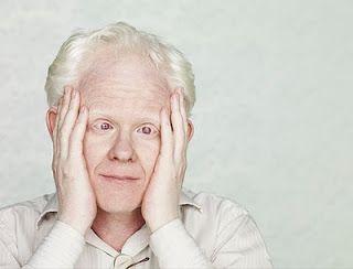 Foto de ROberto Bíscaro,vestindo uma roupa clara e em um fundo claro, Roberto que é albino pousa para a foto com as duas mãos no rosto
