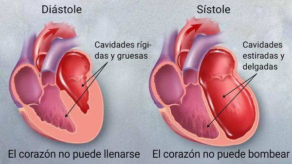 dieta insuficiencia cardíaca congestiva diabetes