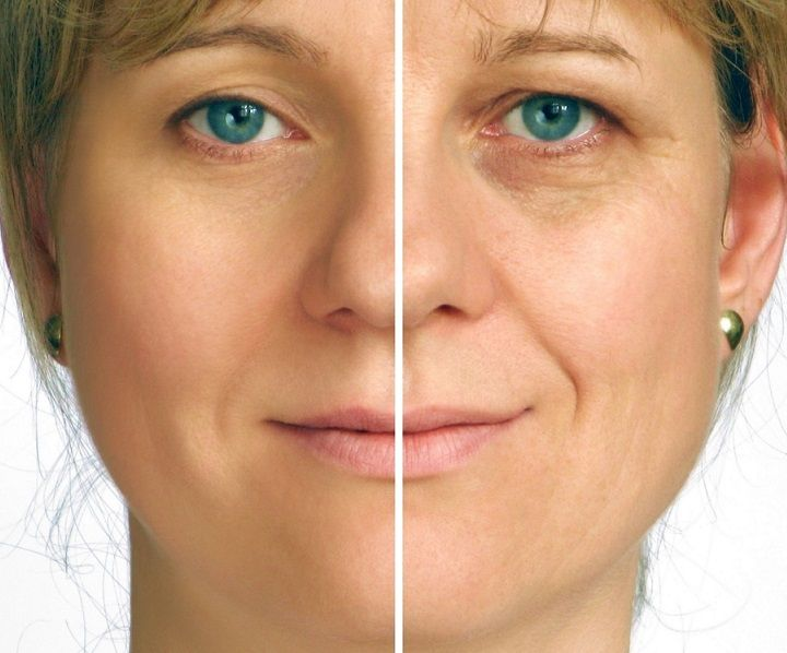 The 5 minute face lift will INSTANTLY make you look 10