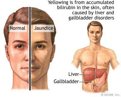 http://liverbasics/fatty-liver-symptoms.html the most, Sphenoid