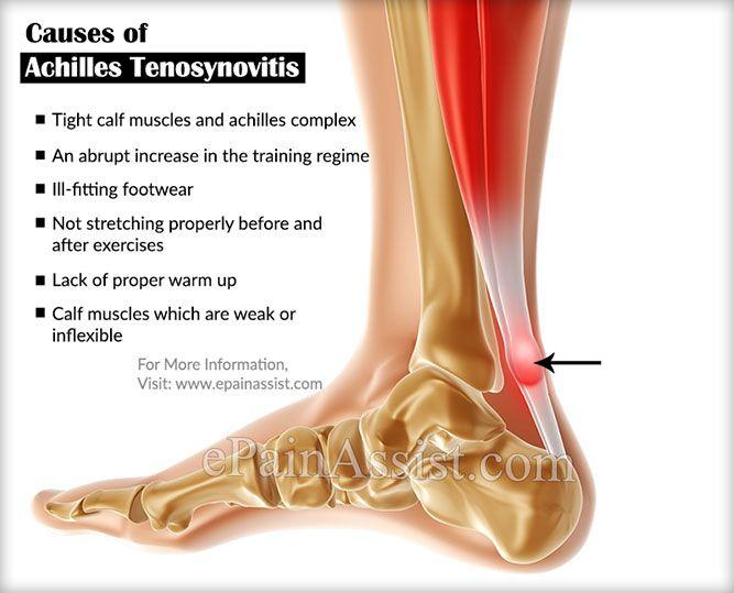 Causes Of Achilles Tenosynovitis Or Paratenonitis Achilles Calf