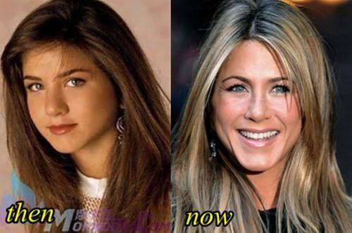 Jennifer Aniston Plastic Surgery Jennifer Aniston Nose Job