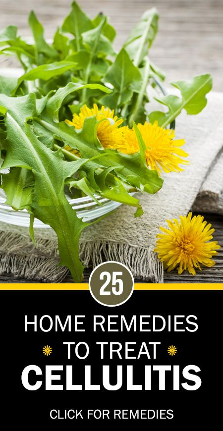 Effective Home Remedies To Treat Cellulitis Remedies - Natural home remedies for cellulitis