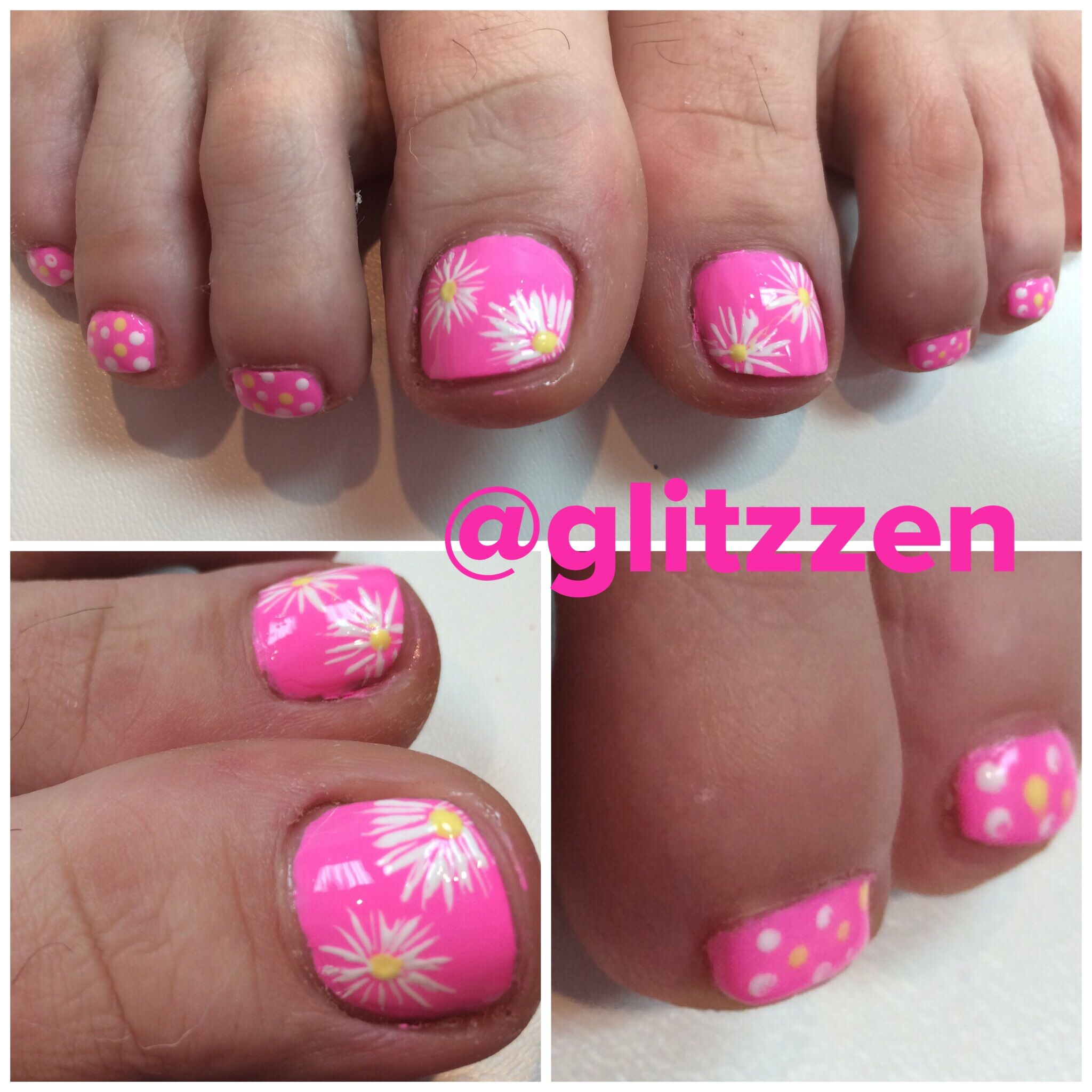 Summertime toes LCN nailart stripers | nails | Pinterest | Pedicures