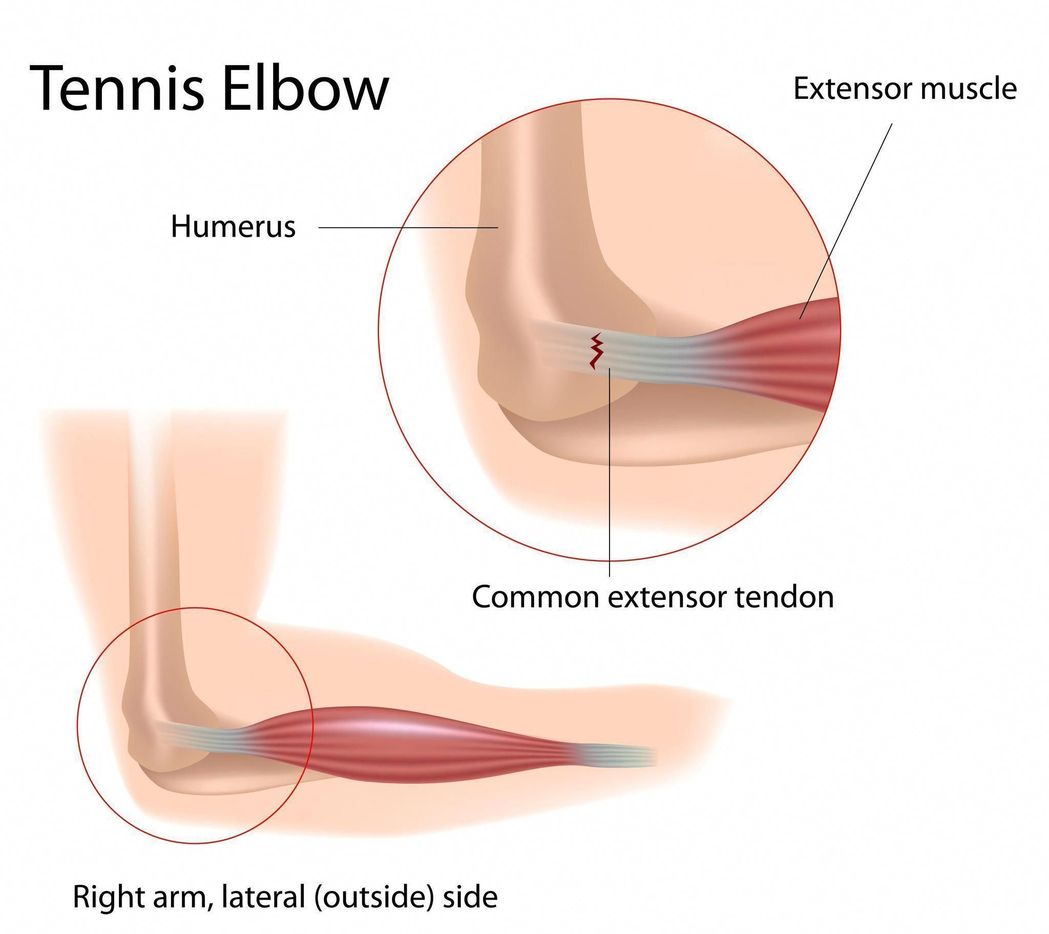 hight resolution of  tennis elbow is a common term for a condition caused by overuse of arm forearm and hand muscles that results in elbow pain you don t have to play tennis