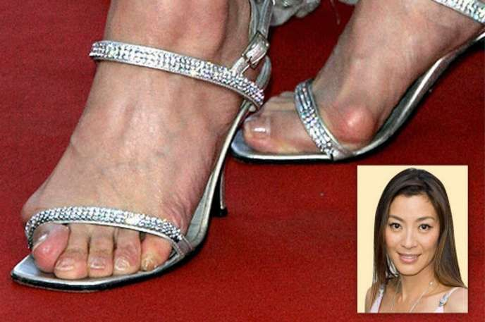 10 Celebs Who Probably Shouldnt Wear Sandals Answerscom For My - 10-celebrities-without-makeup-answers