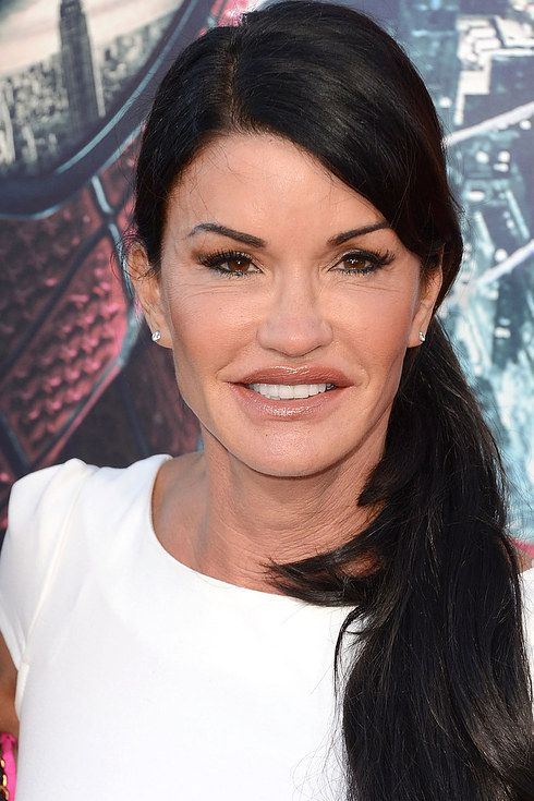 Bruce Jenner Celebrity Plastic Surgery Plastic Surgery