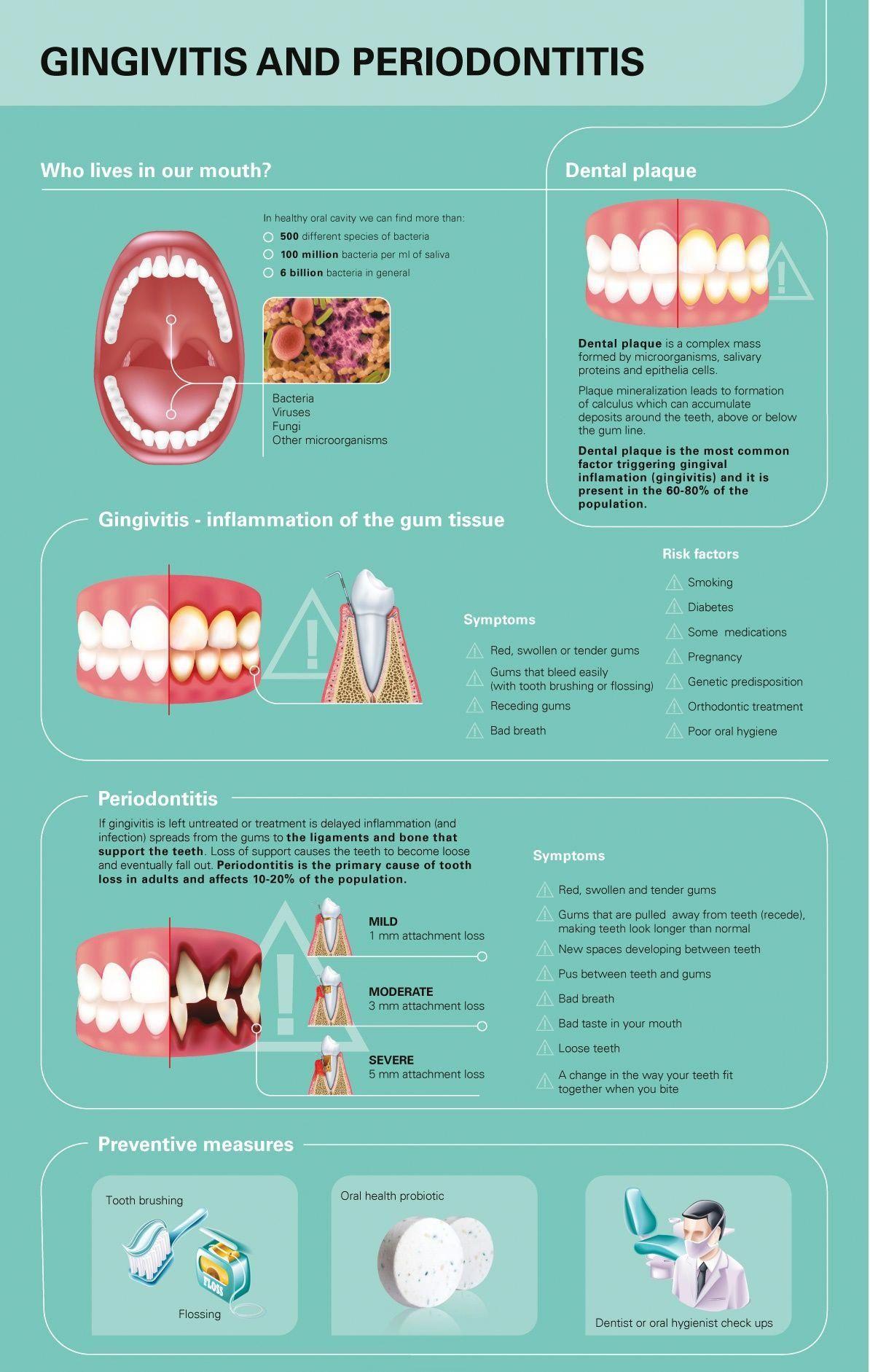 Gingivitis and periodontists gumdiseasecure gum disease