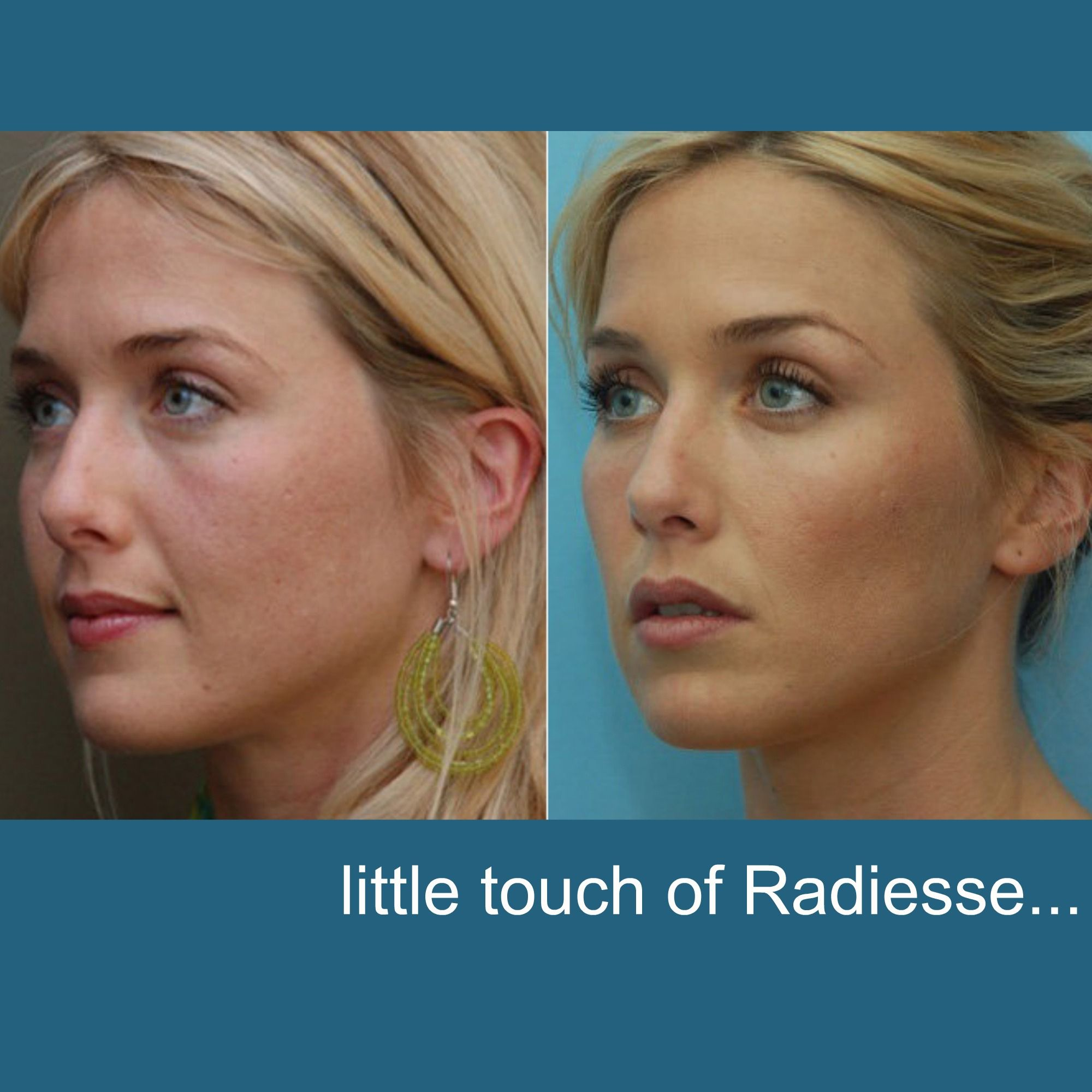Photo of Radiesse Face Contouring | #Revitta 212.535.1201 | www.revitta.com | #radiesse #…