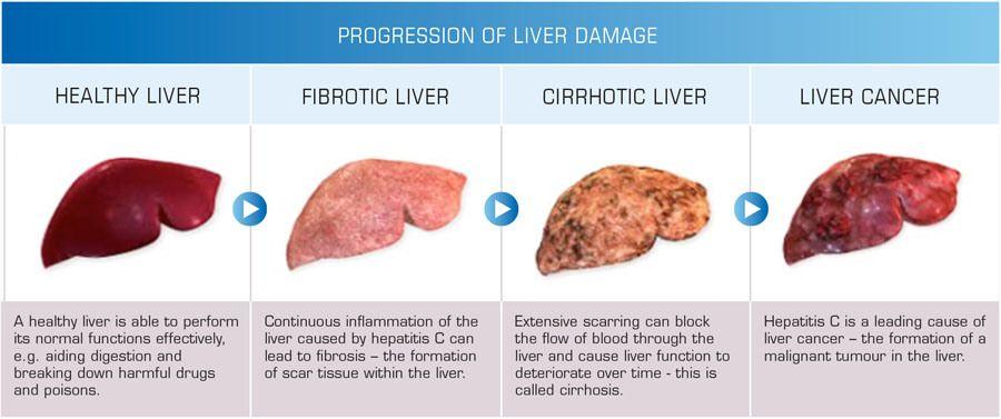 progression of liver damage | health info | pinterest, Sphenoid