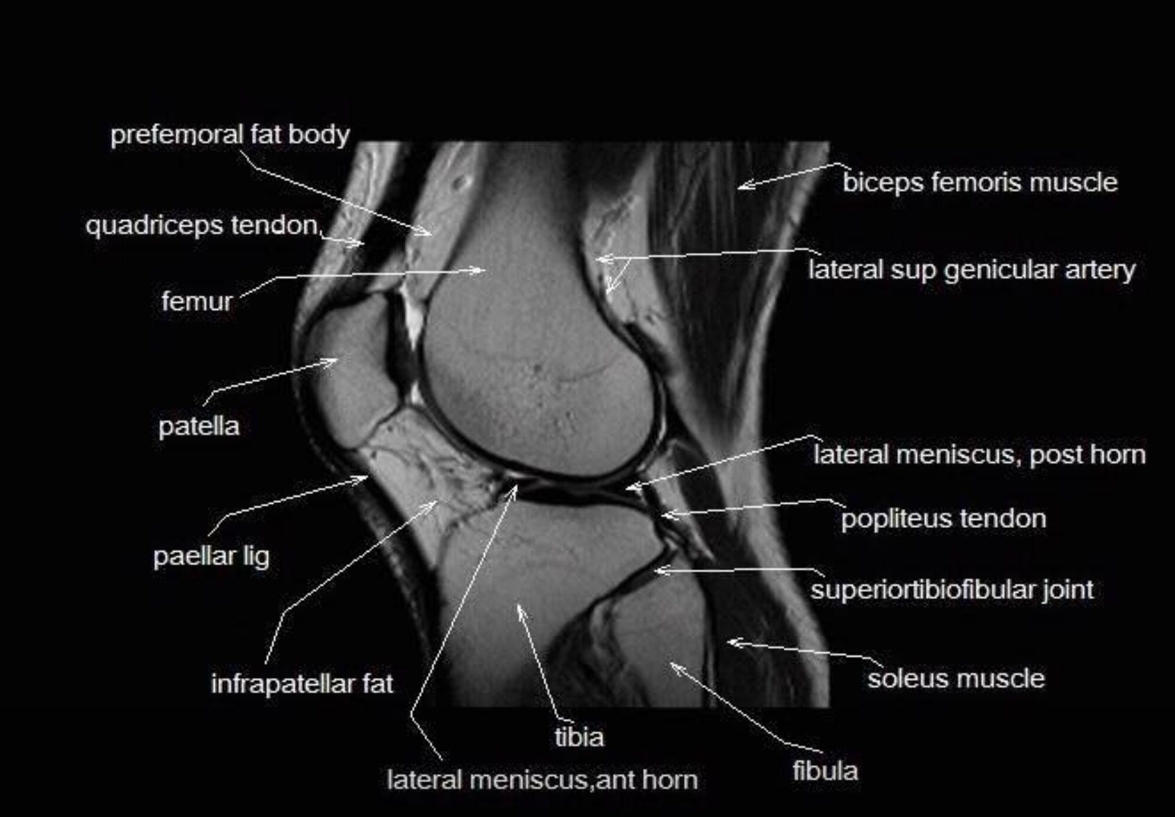 MRI anatomy of the knee www.unidadortopedia.com PBX: 6923370. Unidad ...