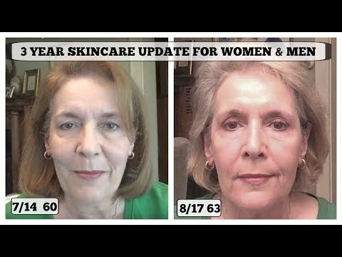 Anti Aging Skincare 3 Year Update For Women And Men Yearly Cost Giveaway Closed Youtube Skin Care Aging Skin Care Anti Aging Skin Care