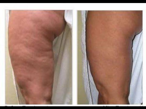 como eliminar grasa de las piernas