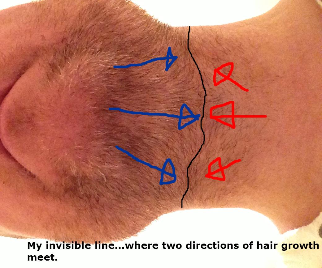 how to get rid of ingrown hairs on bikini line
