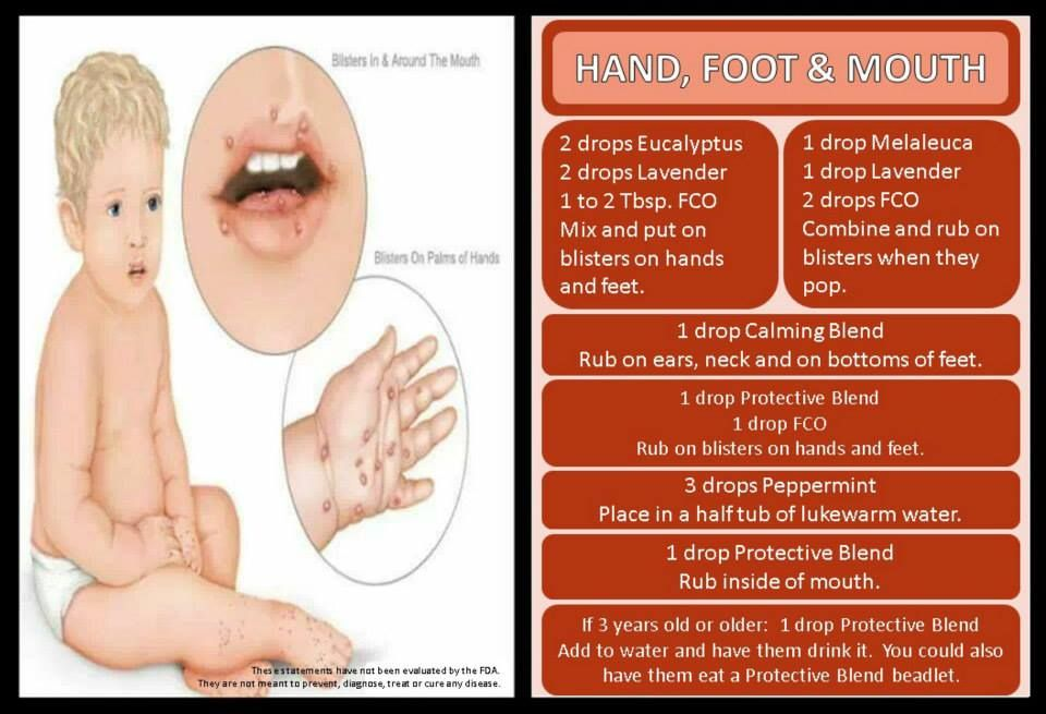 Hand Foot And Mouth Essential Oils For Babies Essential Oil