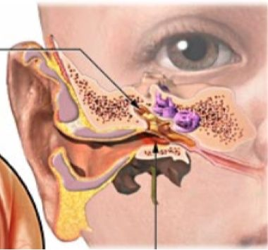 Looking At The Tympanic Membrane In Your Baby Ear Infection Picture Fictional Characters