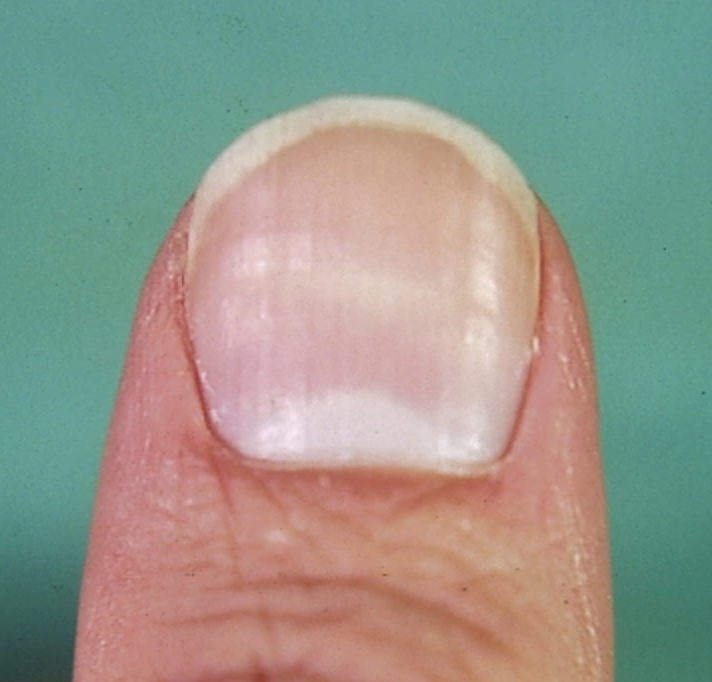 See What Your Finger Nails Say About Your Health