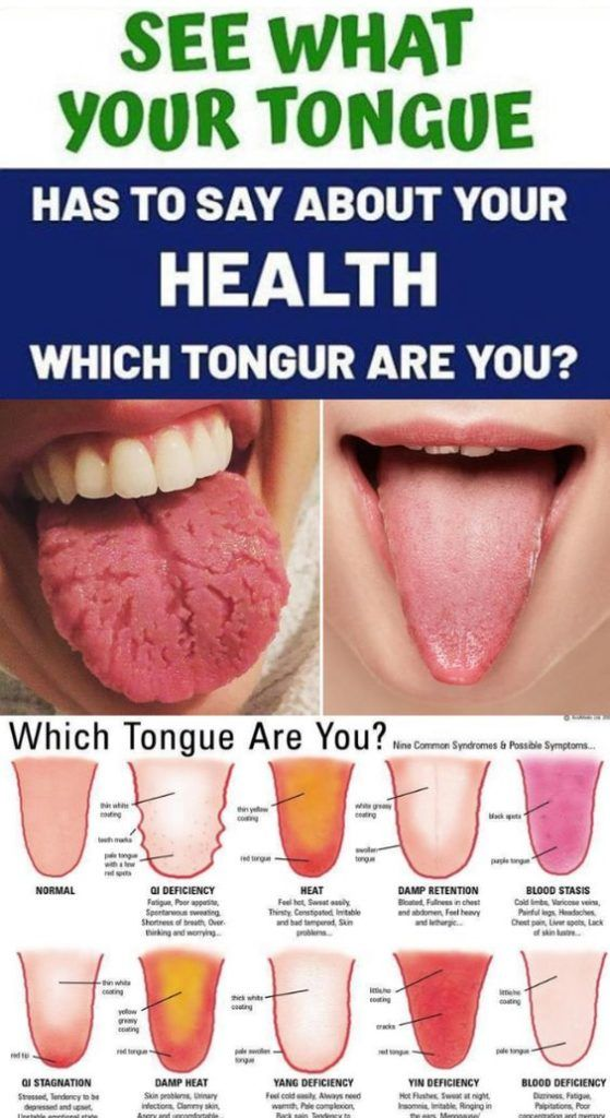 What Is Your Tongue Telling You About Your Health?