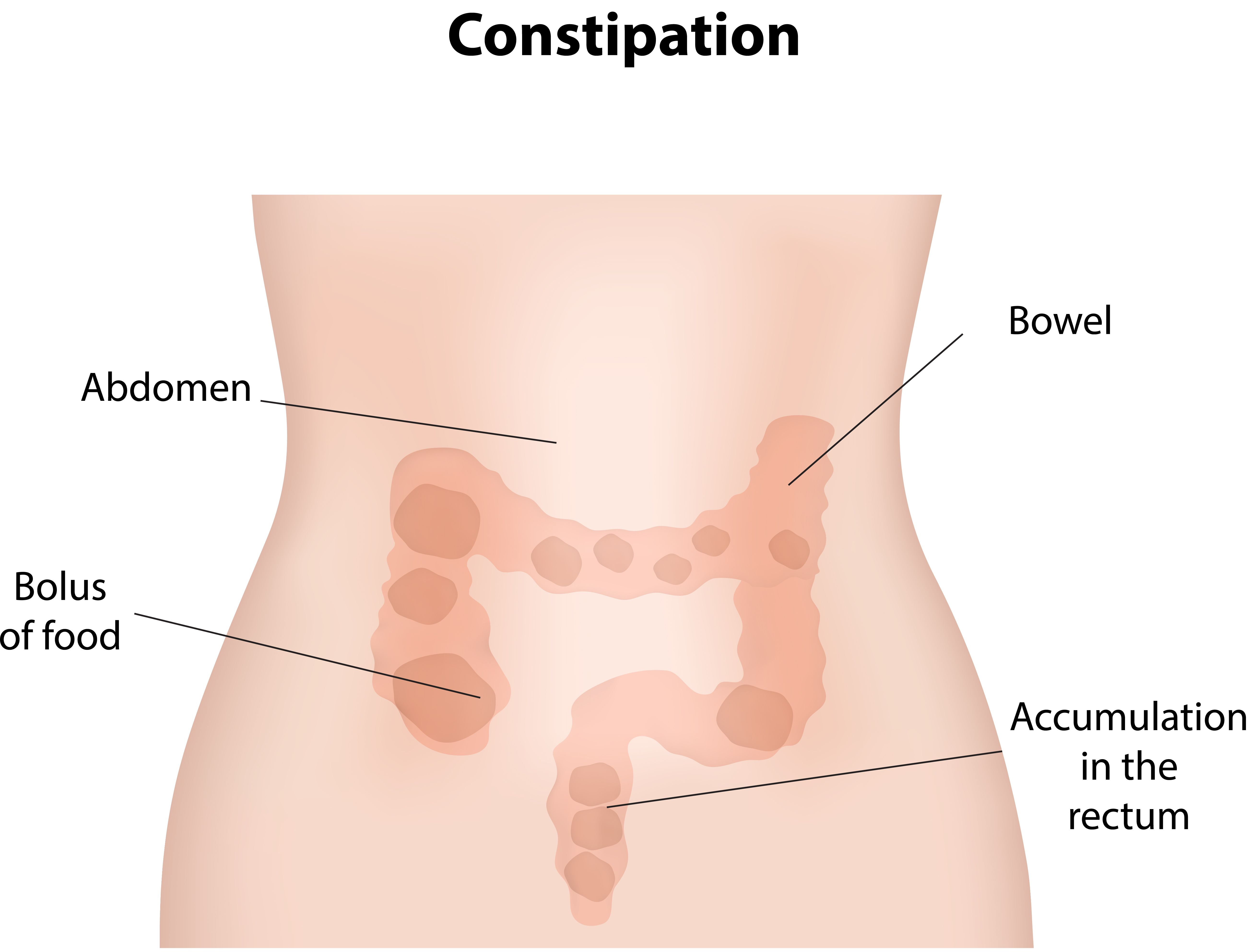 how to relieve pain from constipation