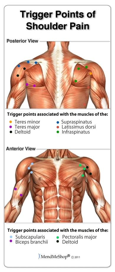 trigger points of the shoulder involve tissue in spasm and accumulation of  toxins  #triggerpoints