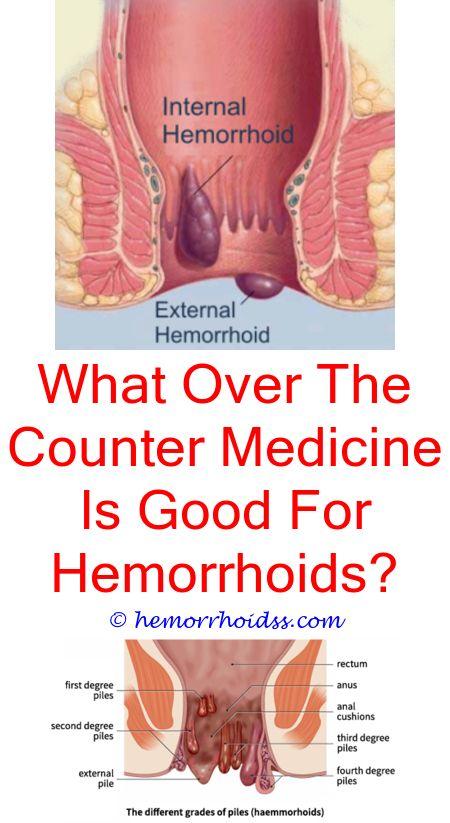 Hemmorrhoids started after anal sex