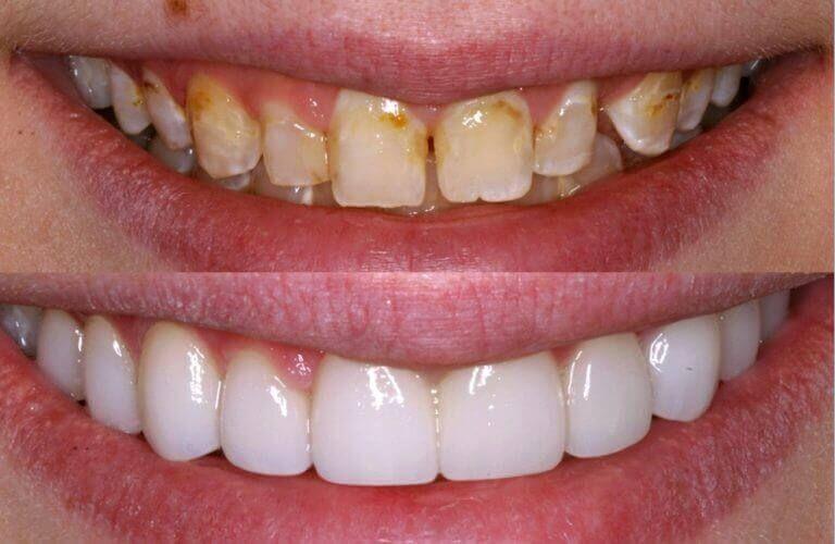 Dental veneers are thin custom made shells designed to