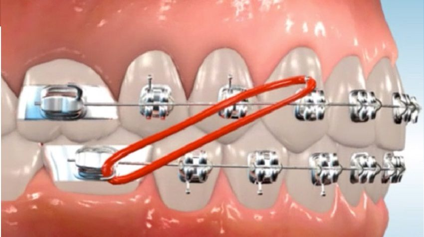 Elastics are used to apply additional pressure needed to