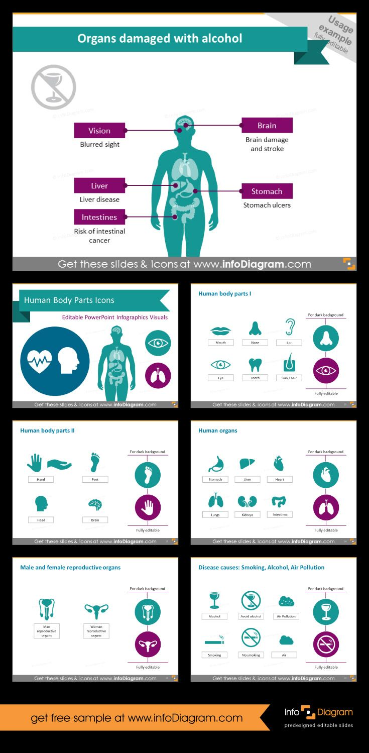 Deaths caused by alcohol poisoning - infographic. It\'s part of ...