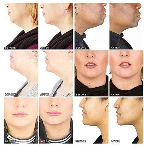 Photo of V-Face™ – Masque Miracle Amincissant et Rajeunissant