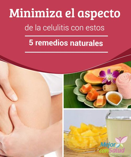 Minimiza el aspecto de la celulitis con estos 5 remedios naturales   La celulitis es uno de los problemas estéticos que más afecta a las mujeres en todo el mundo. En esta oportunidad te compartimos 5 remedios para combatirla.