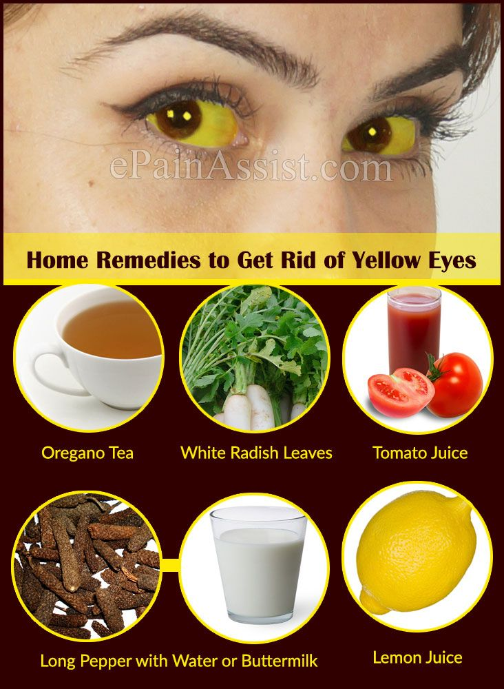 What Causes Yellow Eyes And Home Remedies To Get Rid Of It