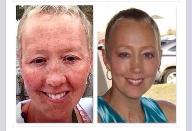 """Details from Donella who is the consultant:  """"Hi TEAM!!! Just wanted to share with you my before and after pics from Rodan + Fields Reverse that seem to be making its rounds on FB. I have changed the after pic as its most recent. I use the Reverse Regimen in the morning, everyday and the the Redefine Eye Cloths, along with the Redefine Multi-Function Eye Cream at night. I have been using it religiously since March. Feel free to use """" PM me and I can get you started…"""