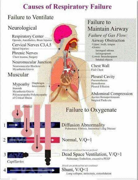 Causes of Respiratory failure | Respiratory, Respiratory ...