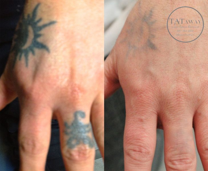 Hand tattoo removal before and after tattoo removal