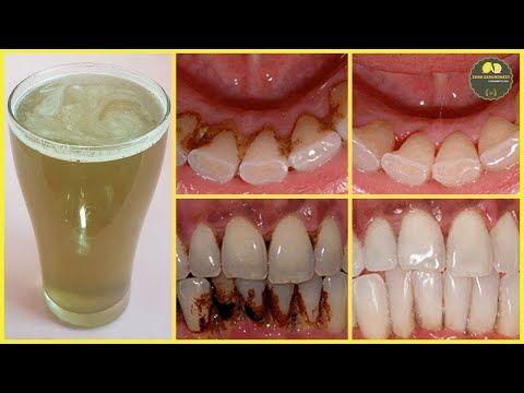 Dieses Mundwasser hilft Zahnstein sehr schnell und einfach zu Hause - YouTube