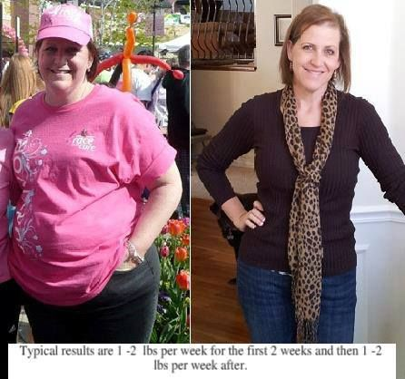 weight loss during chemo for breast cancer