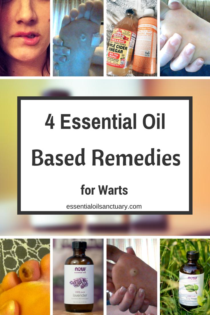 4 Essential Oil Based Remedies for Warts (Verruca