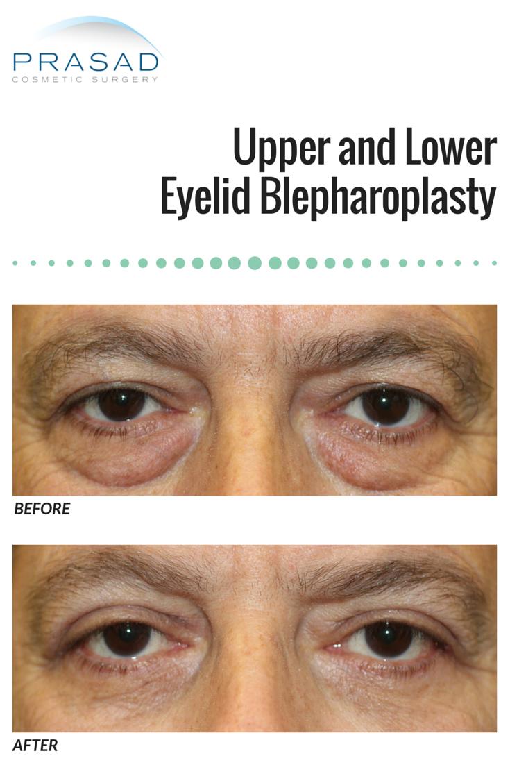 Blepharoplasty cosmetic facial rejuvenation