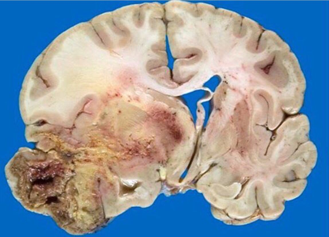 Pin by Jamila Atata on Clinical pathology | Pinterest | Gross anatomy