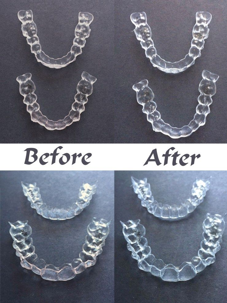 How to Clean Invisalign Trays | Adult Braces | How to clean