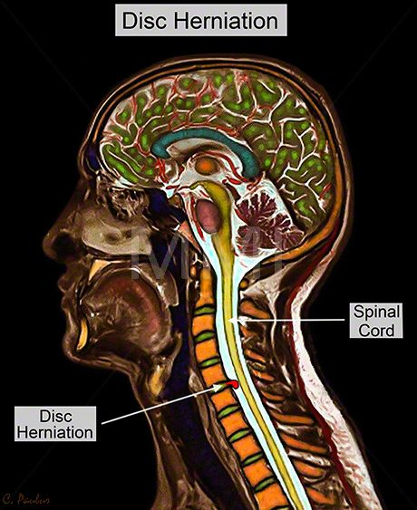 Annotated Color MRI Cervical Spine Anatomy Disc Herniation | 요가 ...