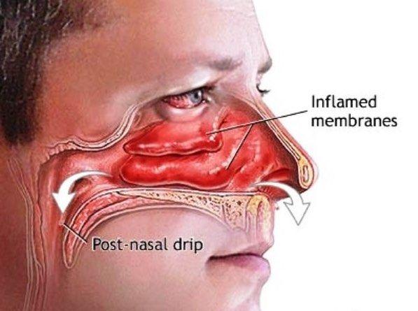 Infección sinusal nariz goteando amarillo