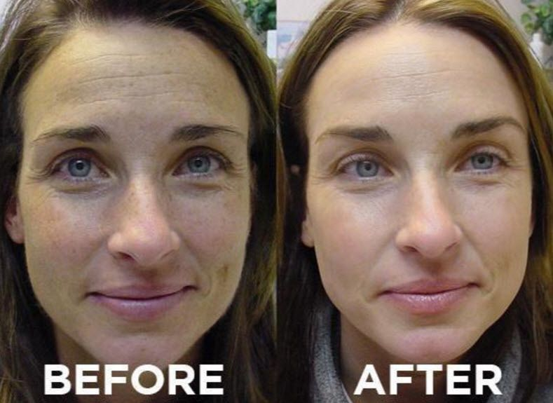 Pin by Jackie S on Beauty   Rosacea treatment, Flushing skin